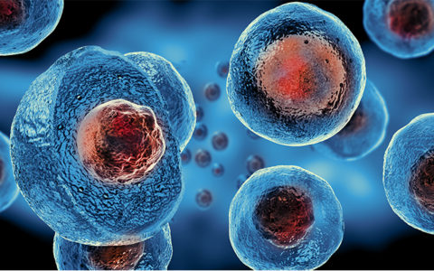 stem cells multiple sclerosis