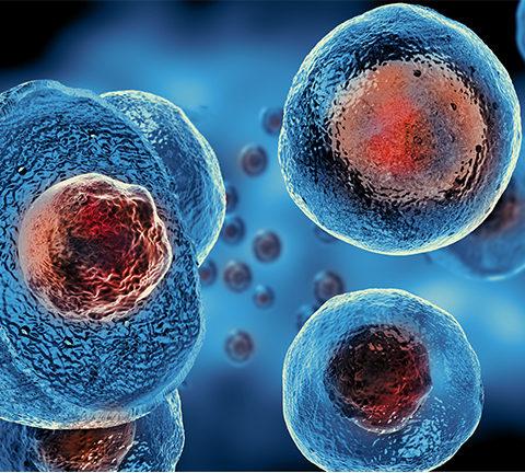 stem cells multiple sclerosis